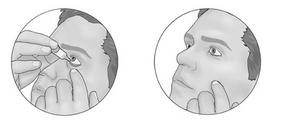 كيف تستعمل مرهم العين.PNG2