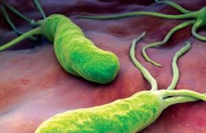 بكتيريا هيليكوباكتر بيلوري ( جرثومة المعدة )