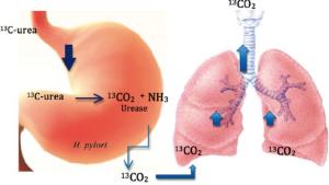 اختبار التنفس للكشف عن جرثومة المعدة