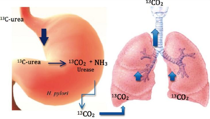 اختبار التنفس للكشف على جرثومة المعدة