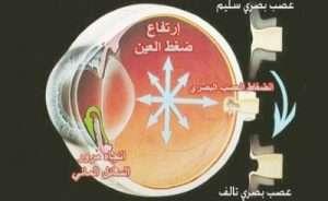 glucoma