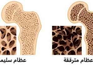 أليندرونات: عقار لزيادة كثافة أنسجة العظام